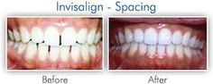 A revolution in orthodontics, at Schwan Dental, Invisalign clear aligners provide an effective way to straighten your teeth while remaining virtually invisible. Wearing the comfortable, customized aligners will gradually shift your teeth into their correct position.