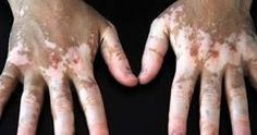 What is Vitiligo? Vitiligo is a skin disorder that causes patches of white skin to appear on different parts of the body. What Is Vitiligo, Vitiligo Skin, Natural Treatments, Natural Cures, Aleo Vera, How To Tan, Medical Textbooks, Vitiligo Treatment, Skin Grafting