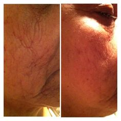 5 days with nerium it works     http://jeanniefunk.theneriumlook.com