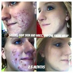"""Wow! Amazing results from a couple of products! She used Greens, Hair Skin and Nails and one facial applicator to achieve those results! Text """"skin"""" to 313-6iwrapu for more info. #Welchwraps"""