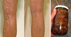 unge-picioarele-cu-acest-ulei-ca-sa-scapi-definitiv-de-varice