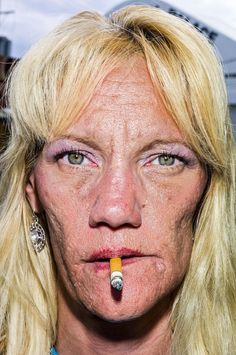 Pain is skin deep: Extreme close-up portraits of people on the edge Extreme Close Up, Martin Parr, Close Up Portraits, Face Reference, Drawing Reference, Photographs Of People, We Are The World, Street Photographers, Magnum Photos