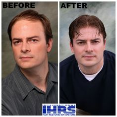 Are you suffering from hair loss? IHRS is here to help! Visit http://www.hair4me.com/index.htm for more information. #hairloss #hairrestoration #bald #balding #IHRS #internationalhairrestorationsystems