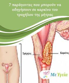 7 παράγοντες που μπορούν να οδηγήσουν σε καρκίνο του τραχήλου της μήτρας   Ο καρκίνος του τραχήλου της μήτρας #προσβάλλει γυναίκες παντού στον κόσμο. Οφείλεται σε μια μη φυσιολογική ανάπτυξη των #κυττάρων στον τράχηλο, τα οποία #σχηματίζουν όγκους που γίνονται κακοήθεις. Παρά την #ικανότητα της σύγχρονης ιατρικής να τον ανιχνεύει και να τον αντιμετωπίζει, αυτός ο τύπος καρκίνου παραμένει η τέταρτη κορυφαία αιτία θανάτου σε γυναίκες ηλικίας 30. #ΥγιεινέςΣυνήθειες Beauty, Beauty Illustration