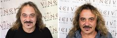 """""""One of the best things I have ever done in my life, was having the hair transplant at the Vinci Hair Clinic in London. Exactly a year a go I came here, and I had a bit of hair here, gaps every where and a huge hole at the back of my head."""" #Wagner #xfactor #hairtransplant #london #vincihair #hair #alopecia #hairline #feelinggood"""
