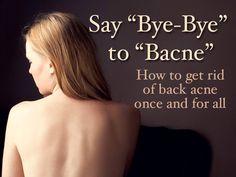 """Say """"Bye-Bye"""" to """"Bacne"""" - Back Acne"""