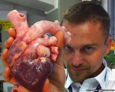 A unique prothetic heart, so unique it can be operated on. A 3D printed heart by Richard Arm