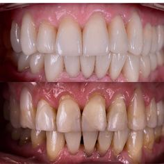 #винирымосква #виниры #veneers#veneer by kochkarovpulat Our Dental Veneers Page: http://www.lagunavistadental.com/services/cosmetic-dentistry/veneers/ Other Cosmetic Dentistry services we offer: http://www.lagunavistadental.com/services/cosmetic-dentistry/ Google My Business: https://plus.google.com/LagunaVistaDentalElkGrove/about Our Yelp Page: http://www.yelp.com/biz/fenton-krystle-dds-laguna-vista-dental-elk-grove-3 Our Facebook Page: https://www.facebook.com/LagunaVistaDental/ Laguna…