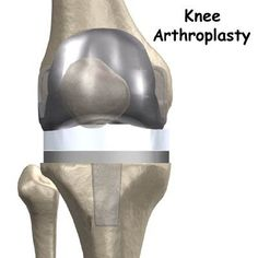 In a uni compartmental knee replacement, only the damaged compartment is replaced with metal and plastic. ‪#‎Knee_Joint_Replacement‬ See More: http://bit.ly/1v9m6mg