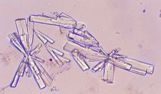 urine crystals - soidum urate Medical Laboratory Scientist, Medical Science, Studying Medicine, Med Lab, Lab Values, Lab Rats, Lab Tech, Body Fluid, Phlebotomy