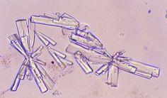 urine crystals - soidum urate