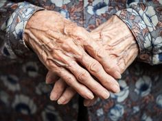 Photo about Aging process - very old woman hands wrinkled skin. Very Old Woman, Aging Parents, Wrinkled Skin, Old Hands, Aging Process, Look Younger, Facial Care, Stem Cells, Anti Aging Skin Care
