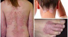6 kraftvolle natürliche Heilmittel für Ekzeme, Hautausschläge und andere Hauterkrankungen