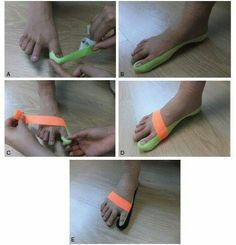 Effects of balance taping using kinesiology tape in a patient with moderate hallux valgus Sacroiliac Joint Dysfunction, Foot Exercises, Stretches, Volleyball Workouts, Kinesiology Taping, Sprained Ankle, Bunion, Athletic Training, Sports Medicine