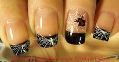 Abnorm Nail Behavior: Black Widow Nails