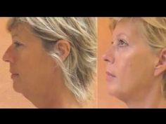 Face It by Tonetix. Facial exercises that take 2 minutes am/pm. $69. You WILL see a difference in just a week.  It really works.