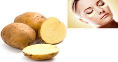 Potatoes Against Wrinkles and Dark Eye Circles