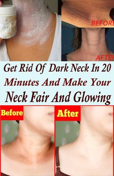 First step starts with steaming your neck Take a towel, soak in hot water and steam your neck by applying it on your neck, do this for 2 to 3 minutes Dark Skin Around Neck, Dark Spots On Skin, Dark Neck Remedies, Skin Care Remedies, Blemish Remedies, Diy Natural Beauty Recipes, Beauty Tips For Skin, Skin Whitening Soap, Melt Belly Fat