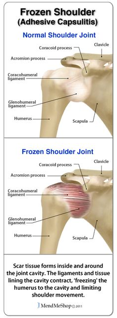 Scar tissue that forms inside and around the joint cavity contracts the ligaments and tissue lining the cavity, 'freezing' the humerus to the vaity and limiting shoulder movement.