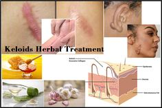 Herbal Treatment of Keloids Skin Scar