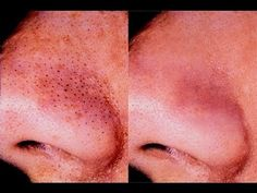 There is a natural way to remove your blackheads. You simply need a cotton ball or pad, fine salt, baking soda and gel facial wash. Mix one tablespoon each of baking soda and salt to your gel facial wash and apply this mixture to a damp face. Beauty Care, Diy Beauty, Beauty Makeup, Beauty Hacks, Beauty Skin, Beauty Ideas, Fashion Beauty, Face Beauty, Natural Beauty Tips