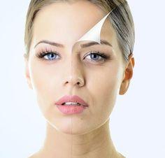 Existen diferentes tratamientos, procedimientos y técnicas para el rejuvenecimiento facial.¿Quieres saber cuáles son los mejores?