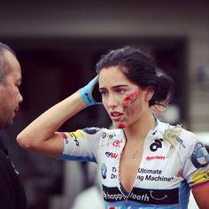 Tour de Delta's White Spot RR Sunday, maggio 2016. La canadese Shoshauna Routley (1986) reca evidenti i segni della sua caduta.