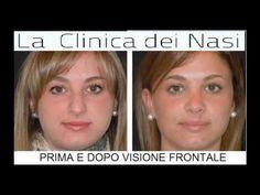 INTERVENTI DI RINOPLASTICA  PRE E POST PRESSO LA CLINICA  DEI NASI DEL D...