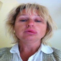 Dermatographic urticaria - Wikipedia