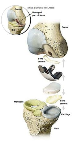 Partial Knee Replacement | Resurgens Orthopaedics