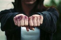 Anna has no qualms against the bruises that are peppered across her knuckles. Not even the dried blood bothers her.