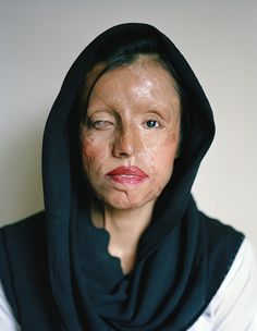 """Saira was burned when her fiancé attacked her with acid after she expressed her desire to complete her education before moving in with him. Saira's burns left her with a scarred face and partial vision... She is not a woman hiding away at home, desperately avoiding the stares and smirks of relatives and neighbors. Instead, Saira dared to go out and complete vocational training and is now active in the world, earning her own living—as a beautician in a beauty salon."""