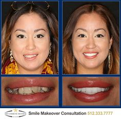 Austin Sedation Dentistry: The Smile Solution One of the biggest advantages of sedation dentistry is that it allows several dental treatments to be performed in one visit which saves you time and makes your cosmetic dentistry treatment much more convenien http://getfreecharcoaltoothpaste.tumblr.com