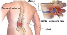 Source Source Progression of Herniated Disc Sciatica Causes Sciatica is the proverbial pain in the butt, and in more ways than one. As anyone who has suffered from low back pain due to sciatica wil… Chronic Lower Back Pain, Relieve Back Pain, Low Back Pain, Foot Exercises, Back Pain Exercises, Stretching Exercises, Foot Stretches, Sciatica Exercises, Spinal Disc Herniation