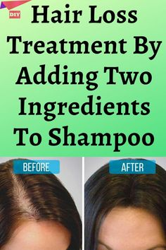 Hair Loss Treatment By Adding Two Ingredients To Shampoo