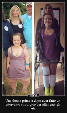Una donna prima e dopo aver fatto un intervento chirurgico..