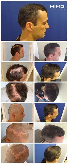 FUE hajátültetés előtti eredmény utáni képek peter p - PHAEYDE Clinic Michael Kors Men, Handbags Michael Kors, Lip Filler, Hair Clinic, Before After Photo, Cure, Hair Restoration, Hair Transplant, Handbags On Sale