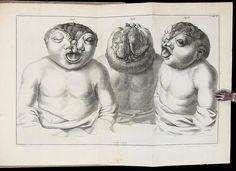 Specimen Observationum Academicarum, ad Monstrorum Historiam, Anatomen, Pathologiam, et Artem Obstetriciam, Praecipue Spectantum - Price Estimate: $600 - $900