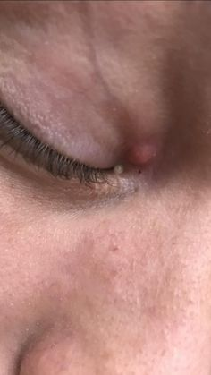 [skin concerns] I have had this bump on my eye for the past year or so. It started small and white and has grown a bit since. It has now turned red and stings hurts a bit when touched. I don't know if it's milia or something else but it's only gotten worse!