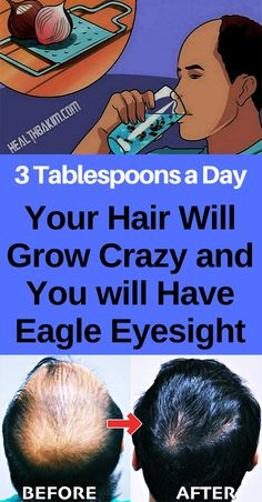 3 Tablespoons a Day ,Your Hair Will Grow Crazy and You will Have Eagle Eyesight