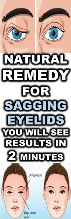 Natural Remedy For Sagging Eyelids. You Will See Results In 2 Minutes - My Daily Health