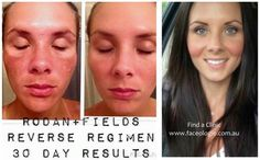 #resultsrodanandfields SKINCARE - Reverse after 30 days