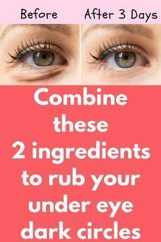 Combine these 2 ingredients to rub your under eye dark circles Today I will share an excellent remedy on how to remove dark circles naturally. This remedy will also get rid of puffy eyes, eyelashes, and eye bags. You must repeat this procedure 3 times in Beauty Skin, Health And Beauty, Beauty Care, Dark Circle Remedies, Dark Circles Under Eyes, Eye Cream For Dark Circles, Christina Grimmie, Puffy Eyes, Droopy Eyes