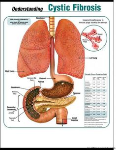 Cystic Fibrosis - HealthResource4u.com explains the causes, symptoms, and treatment of cystic fibrosis, a genetic disease that causes mucus to build up in the lungs.