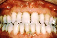 Gum Disease      Link: http://www.dental-public-health.com/periodontal-disease.html    Link: www.ruheejaffer.com