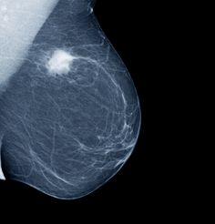 BREAST ULTRASOUND: BETTER SCREENING FOR MORE WOMEN?