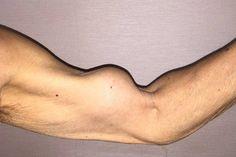 Cuándo el brazo de Popeye deja de ser símbolo de fuerza y se convierte en algo indeseable - Publimetro Chile