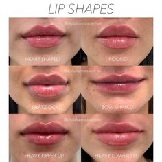 Face Fillers, Botox Fillers, Dermal Fillers, Spiderbite Piercings, Botox Lips, Facial Aesthetics, Medical Aesthetics, Lip Augmentation, Lip Shapes