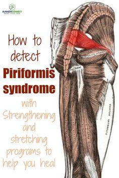 Cómo detectar el síndrome piriforme y un fortalecimiento específico y programa de estiramiento para ayudar a que regrese a la formación sana