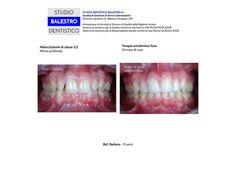 Casi clinici ortodontici Malocclusione di classe 2/2 con morso profondo http://www.studiodentisticobalestro.com/2014/06/malocclusione-di-classe-22.html